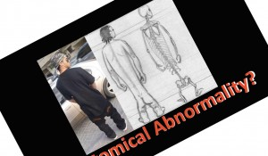 anatomical abnormality front icon